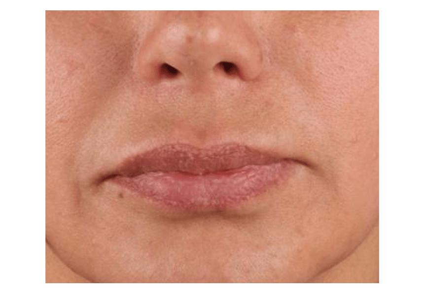 lip_lift_before